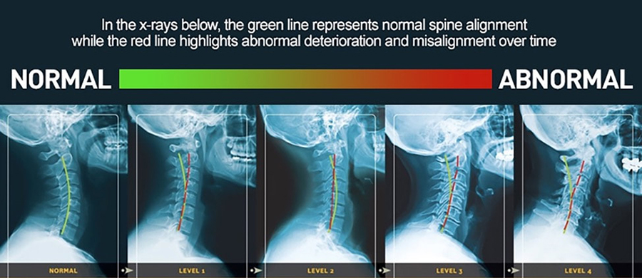 Cervical Kyphosis, Demystified